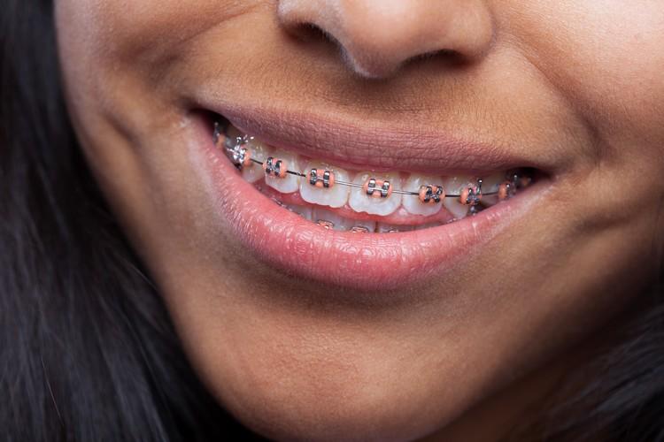 Saiba o que é ortodontia