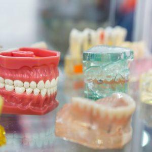 Como aumentar a durabilidade dos seus implantes dentários