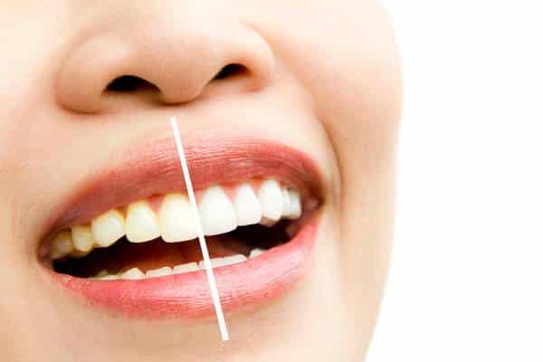 O clareamento dental exige manutenção?