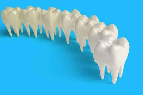 O clareamento altera as restaurações que o paciente possa ter nos dentes?
