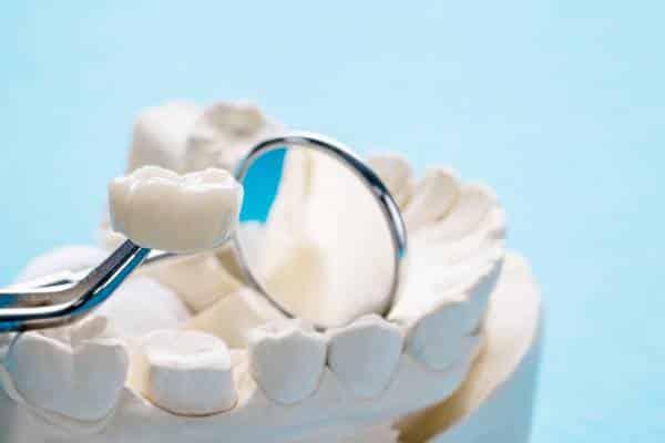 O que você precisa saber sobre restauração dentária